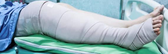 leg bandage, hospital bed
