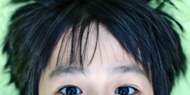 boy's forehead and hair - lobectomy