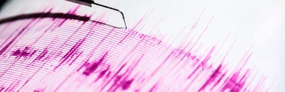seismograph (epilepsy concept)