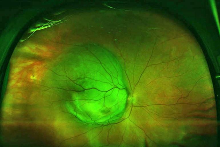 eye cancer