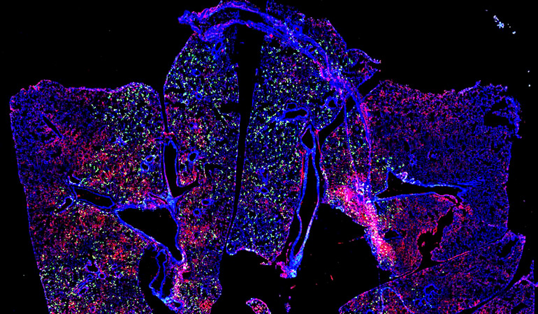 Image of RSV in a mouse lung.