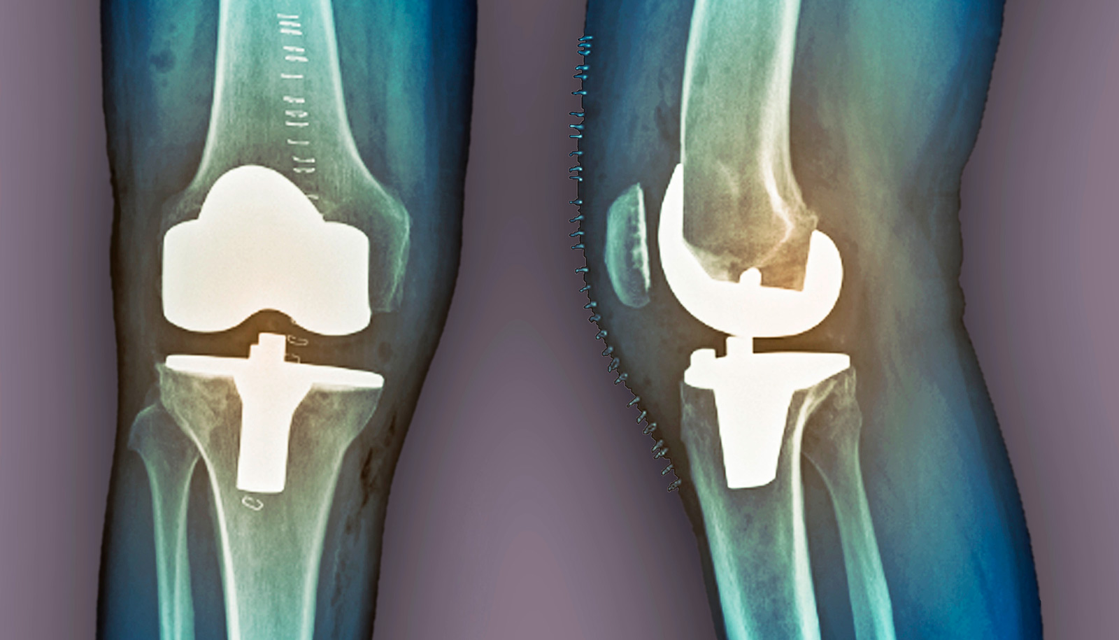 Hospitals may dole out hip, knee replacements unfairly