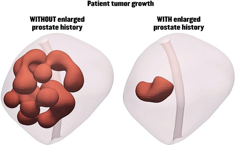 enlarged prostate simulation