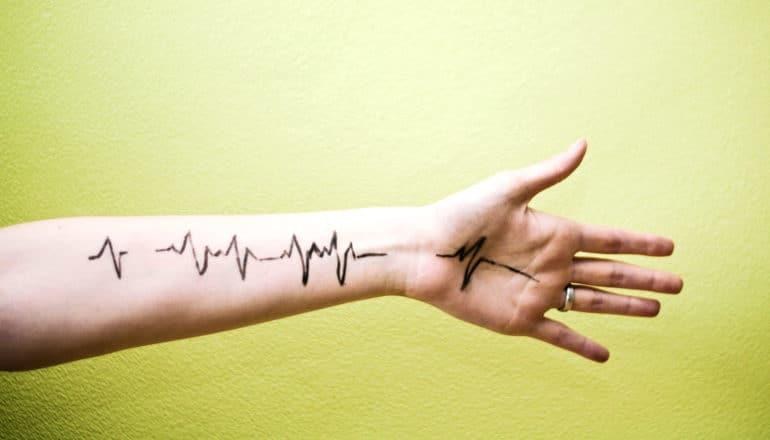arm heartbeat monitor