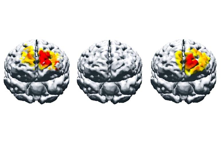 electrostimulation brain comparison