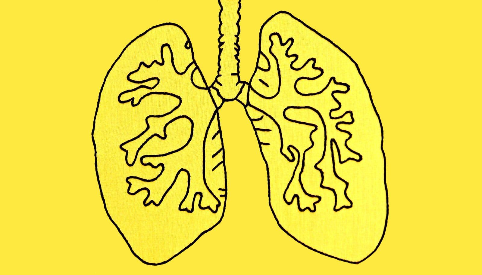 CRISPR thwarts fatal lung disease in fetal mice