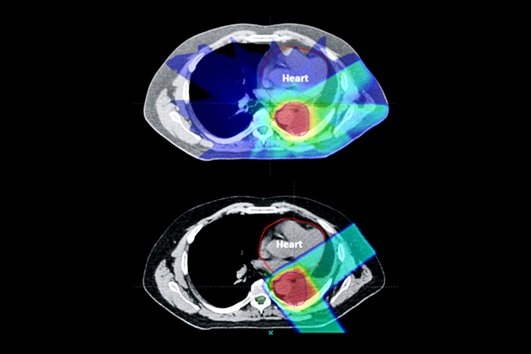proton therapy vs. x-ray radiation therapy
