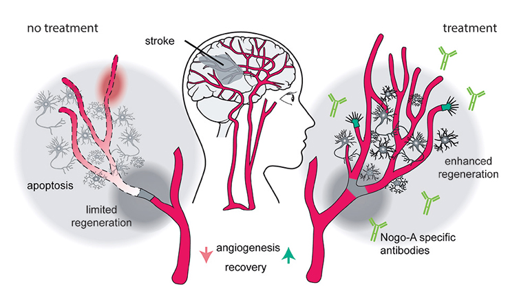 How blocking Nogo-A promotes vascular growth and improves the brain's capacity to regenerate damaged tissue after stroke