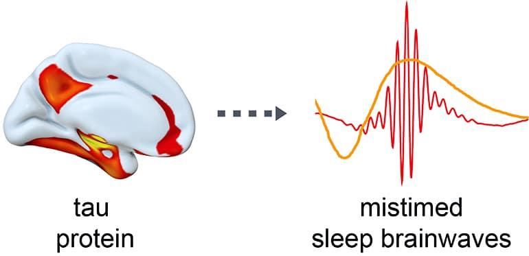 Tau in the brain and sleep brainwaves