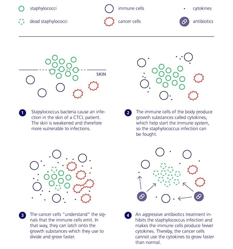 antibiotics lymphoma infographic (CTCL concept)