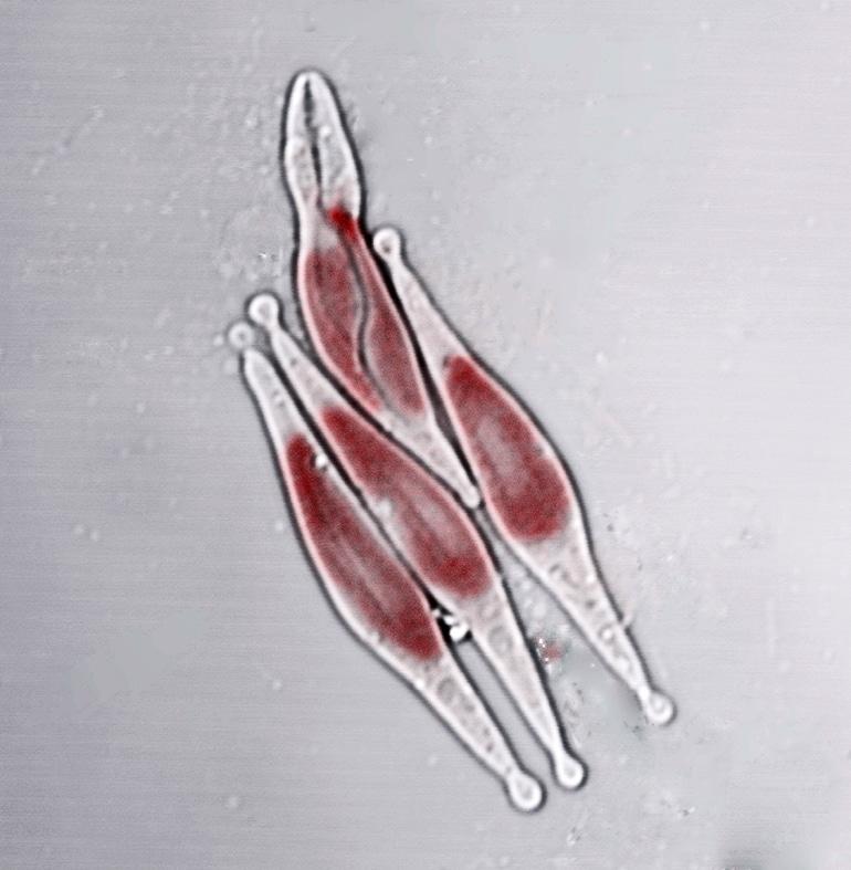 The image shows <em>Phaeodactylum tricornutum</em> diatoms.