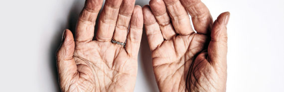 upturned hands of elderly person