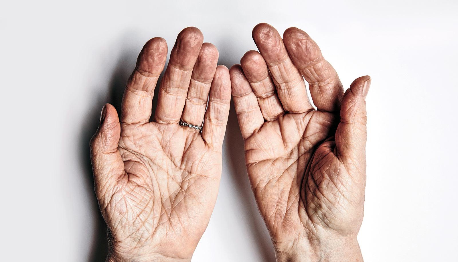 Weak handgrip may warn of cognitive impairment
