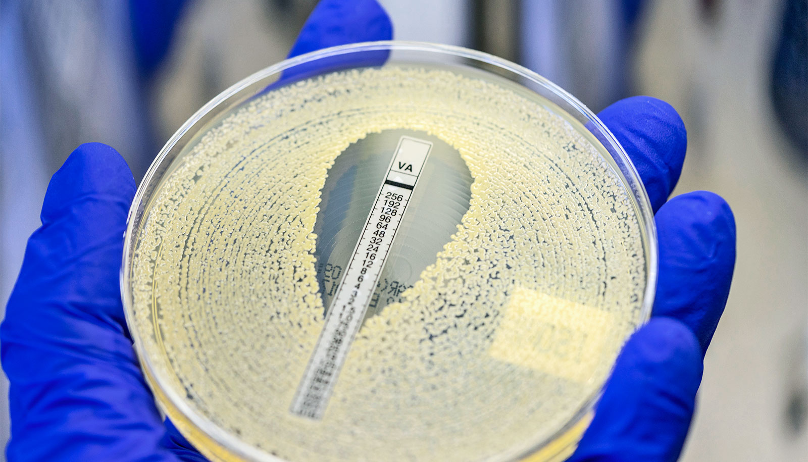 Some people have better genetic protection from MRSA