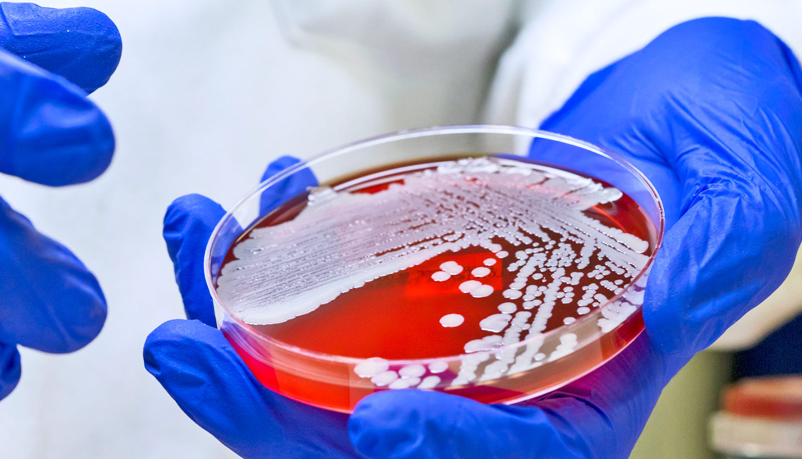 Polymer kills 99.9% of MRSA in just 5 minutes