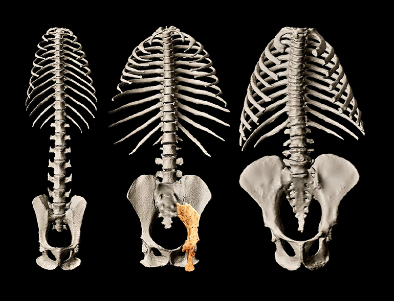 Three sets of rib cages and pelvises sit on a black background, with the Rudapithecus fossil bone over the center pelvis, a poor fit for the other two