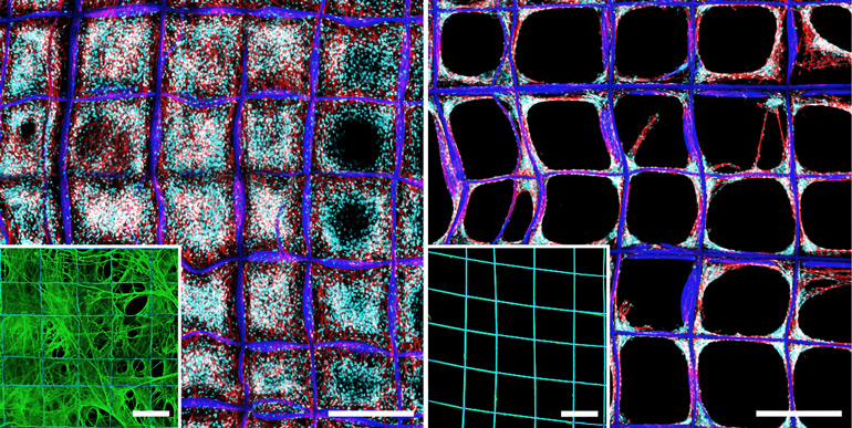 On the left, the scaffold is almost entirely filled in with cells whereas on the right, they haven't filled the compartments and remain on the fibers themselves