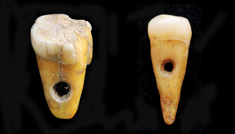 two yellowed teeth with roots with holes through the center