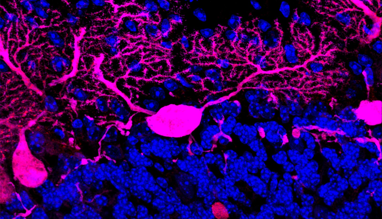 Long tendril-like neurons show up pink against a black background