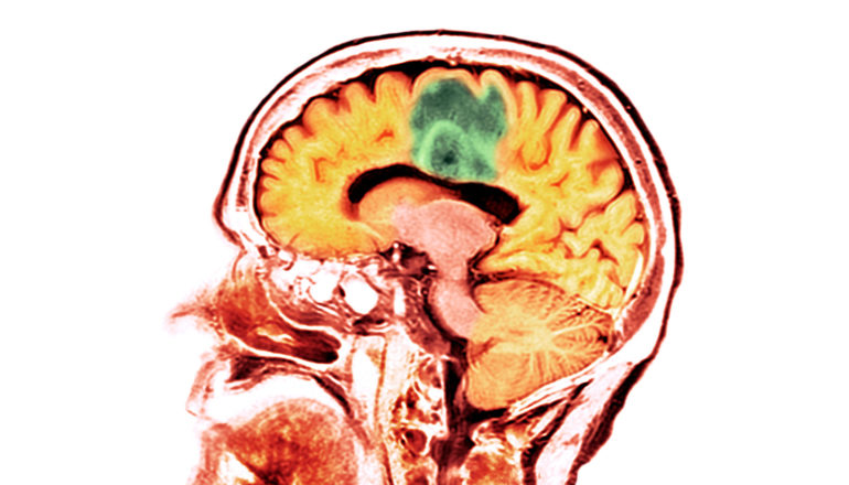An orange and red CT scan of a human head and brain shows a tumor in green