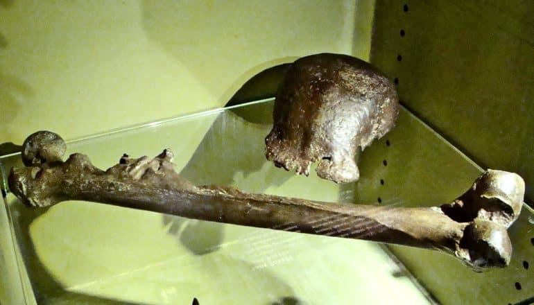 skull cap and femus in glass case