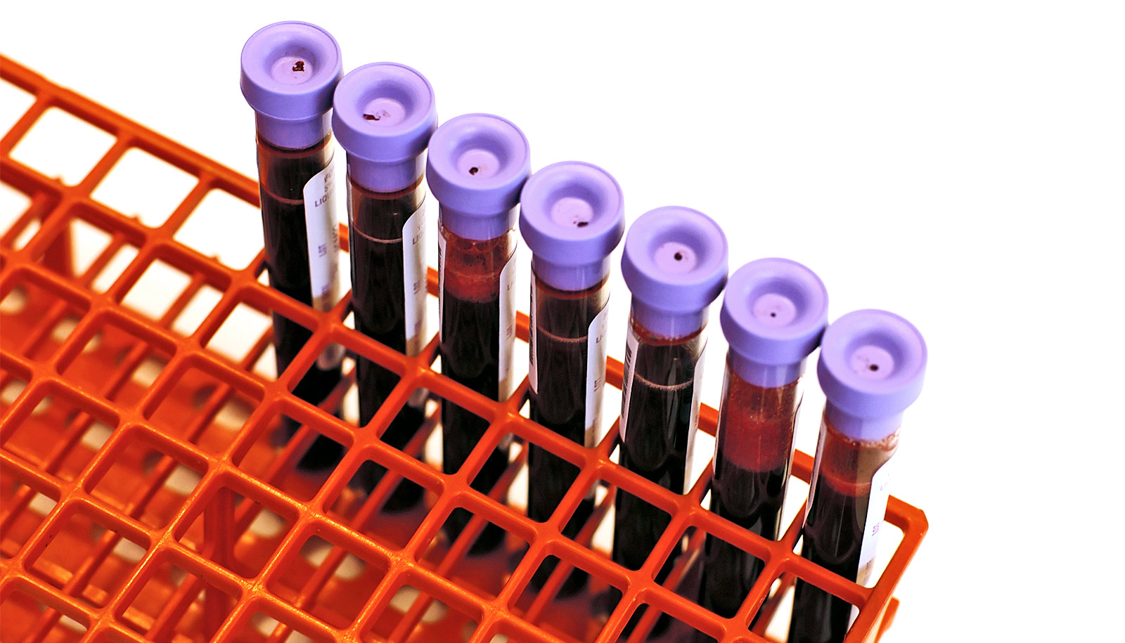 A New Advance in Cancer Testing