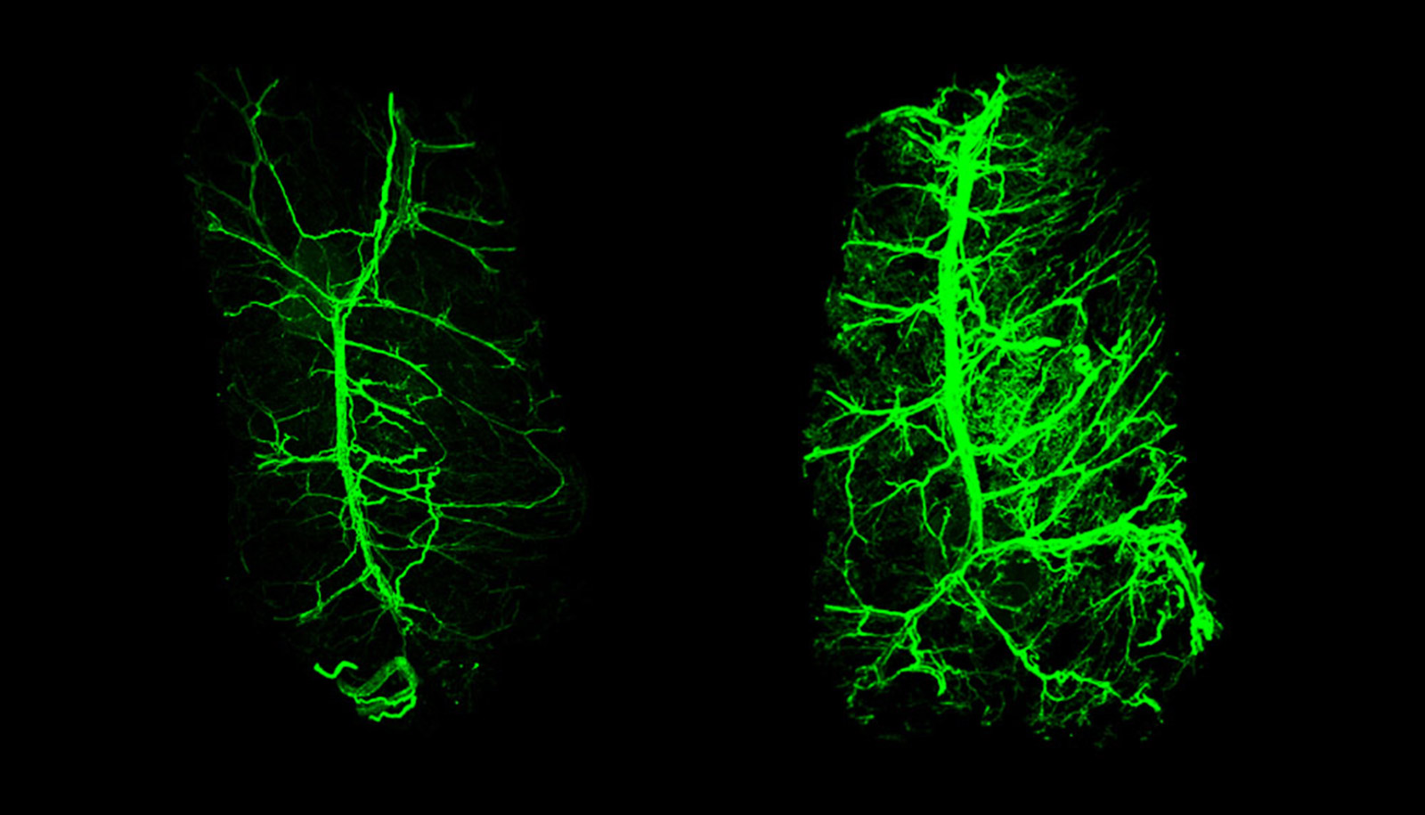Weight loss diet Fat-burning neurons in mice grow with leptin thumbnail