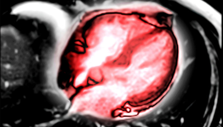 An MRI image with a heart highlighted in red